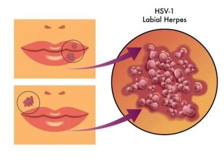 Protetto: COSA FARE IN CASO DI HERPES